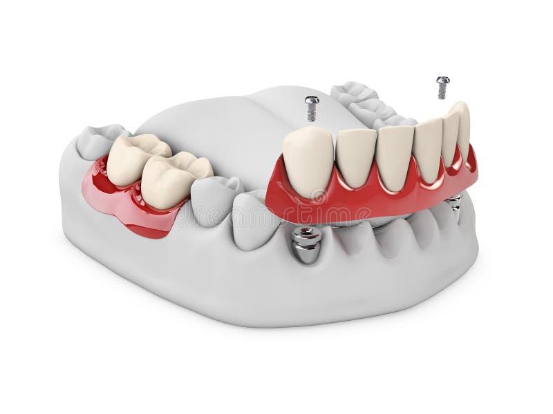Anatomi av sunda tänder och den tand- implantatet i käkeben för handman för begrepp 3d tand för stomatology illustration 3d royaltyfri illustrationer