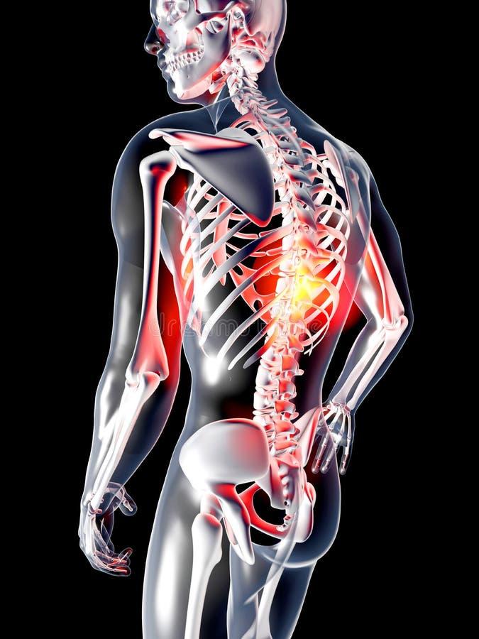Anatomia - ból pleców ilustracji