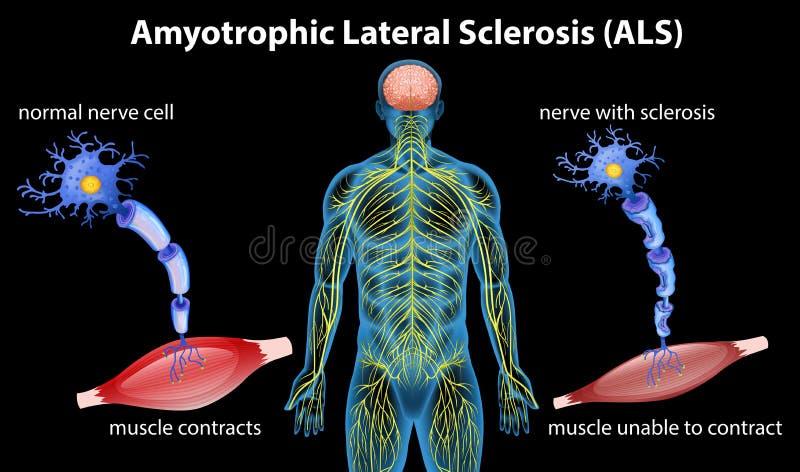 Anatomia da esclerose de lateral amyotrophic ilustração stock