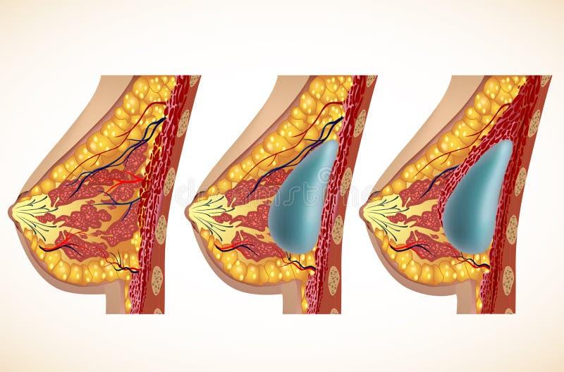 Anatomia do peito e dos implantes Vetor ilustração stock