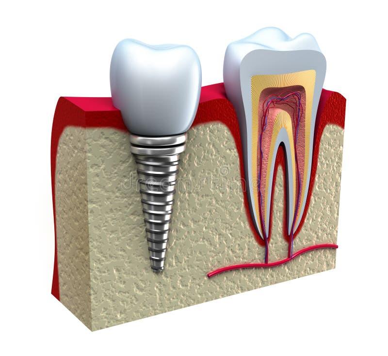Anatomia dos dentes saudáveis e do implante dental ilustração stock