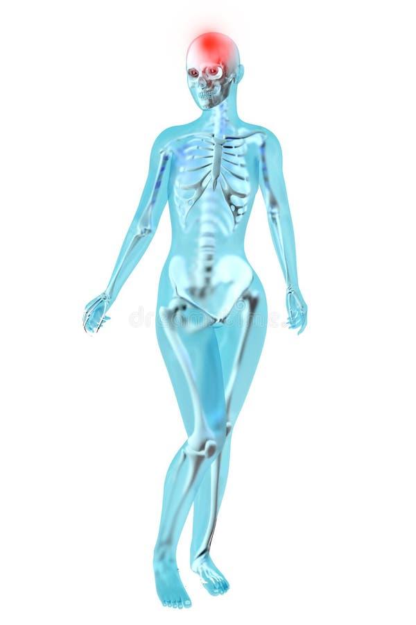 Anatomia femminile - emicrania illustrazione di stock