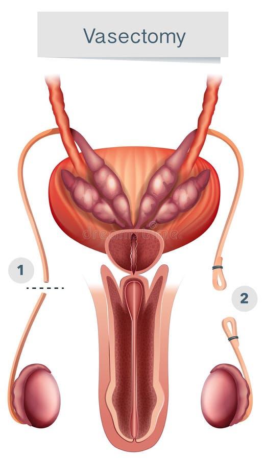 Anatomia humana da vasectomia no fundo branco ilustração do vetor