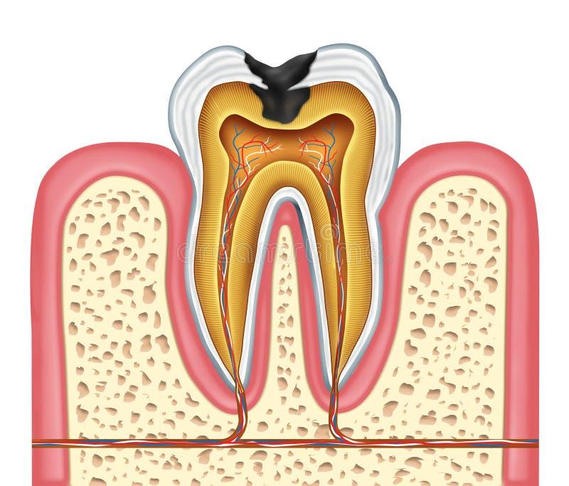 Anatomia interna do dente de uma cavidade ilustração royalty free