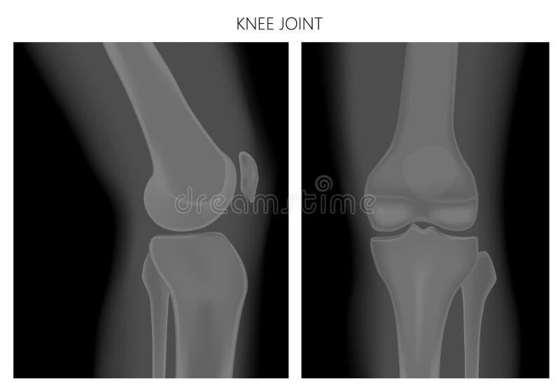 Anatomia knee_X Ray kolana przód i strona ilustracji
