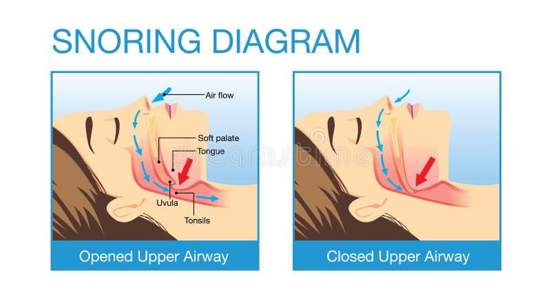 Anatomia ludzka drogi oddechowe podczas gdy chrapający ilustracji