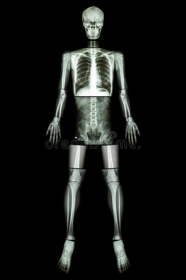Anatomical Position. (X-ray whole body ) royalty free stock image
