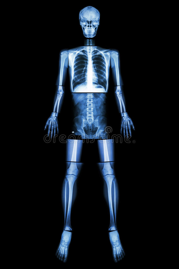 Anatomical Position. (X-ray whole body ). Anatomical Position. (X - ray whole body royalty free stock images