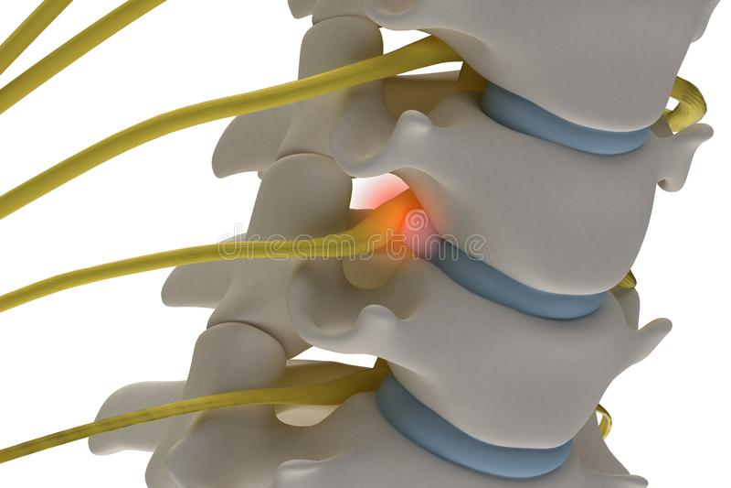Anatomically accurate3d-bild av den cervikala ryggen med framfall av royaltyfri illustrationer