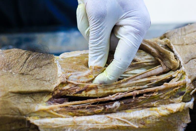 Anatomidissekering av en kanal för kadavervisningadductor genom att använda skalpellsax och kirurgiska tången som klipper hud, vi royaltyfri foto