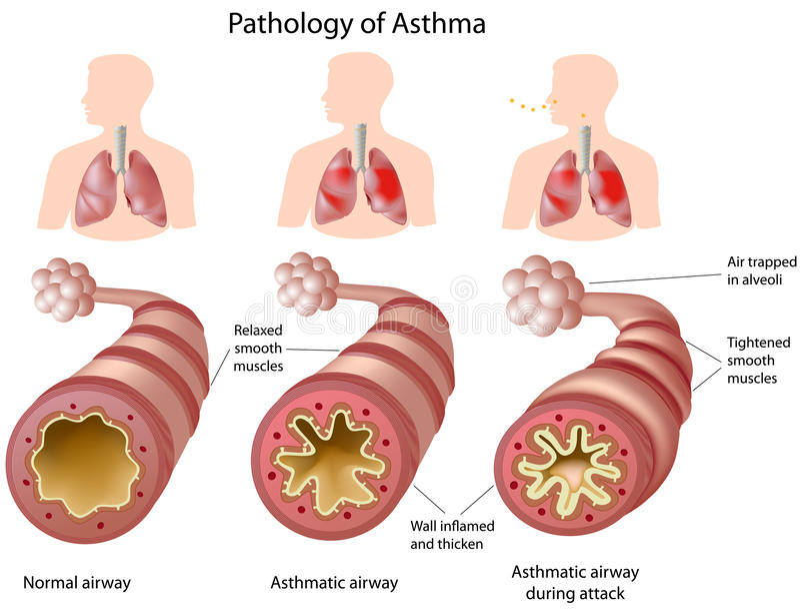 Anatomie d'asthme illustration stock