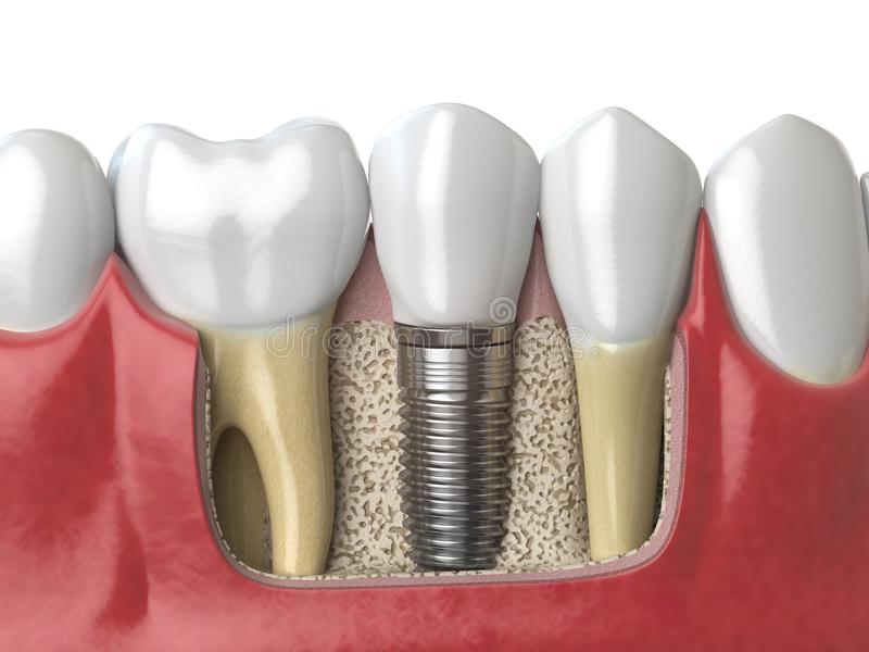 Anatomie des dents saines et de l'implant dentaire de dent dans le dentu humain illustration libre de droits