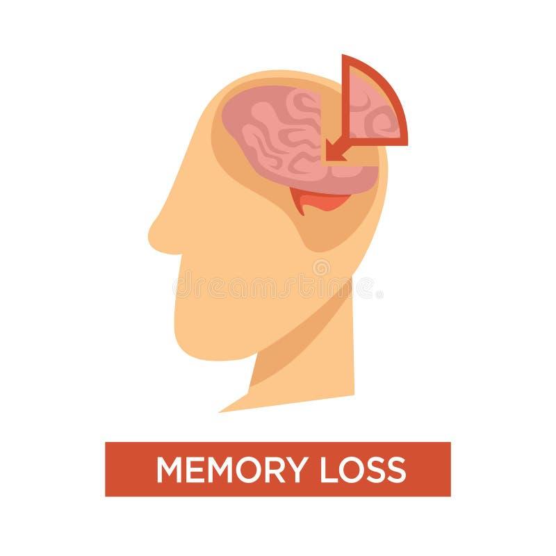 Anatomie des menschlichen Gehirns des medizinischen Problems des Gedächtnisverlustes vektor abbildung