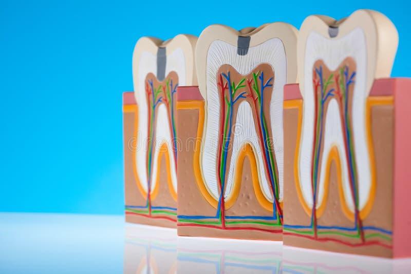 Anatomie des Zahnes, helles buntes Tonkonzept lizenzfreie stockfotos