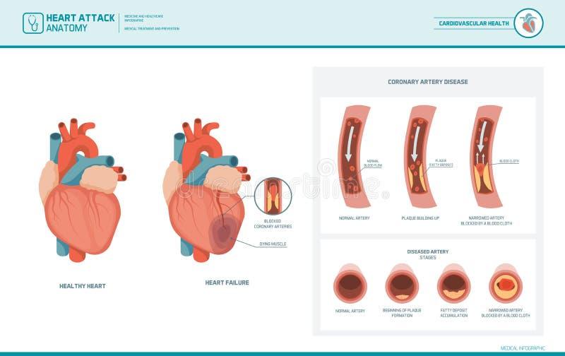 Anatomie eines Herzinfarkts stock abbildung