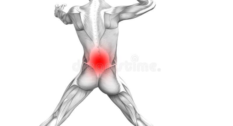 Anatomie humaine arrière avec l'inflammation d'un rouge ardent de tache illustration de vecteur