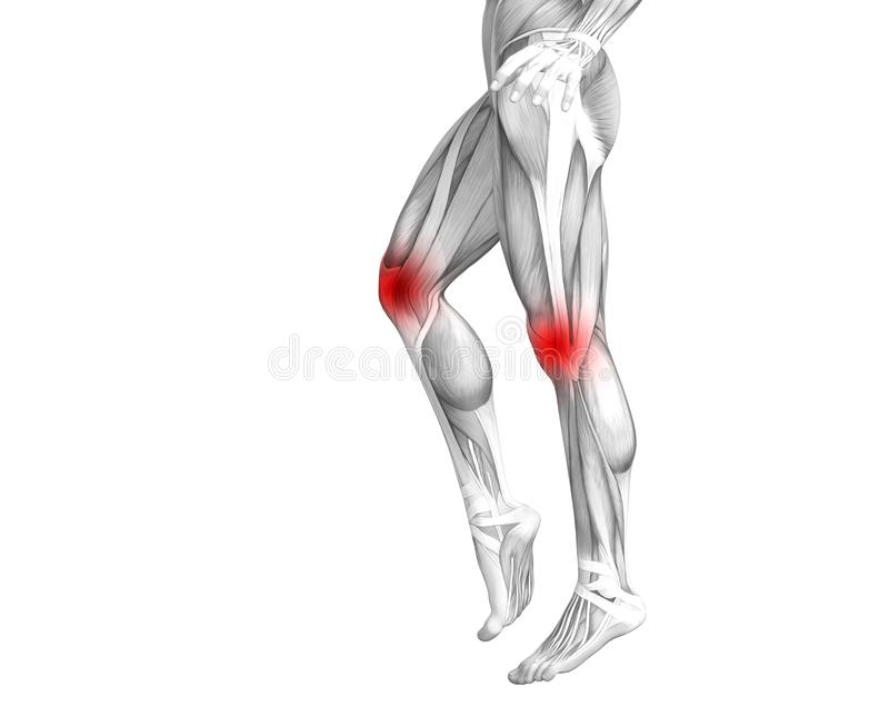 Anatomie humaine de genou avec l'inflammation d'un rouge ardent de tache ou douleurs articulaires articulaires illustration de vecteur