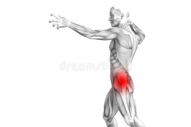 Anatomie humaine de hanche avec l'inflammation d'un rouge ardent de tache illustration libre de droits