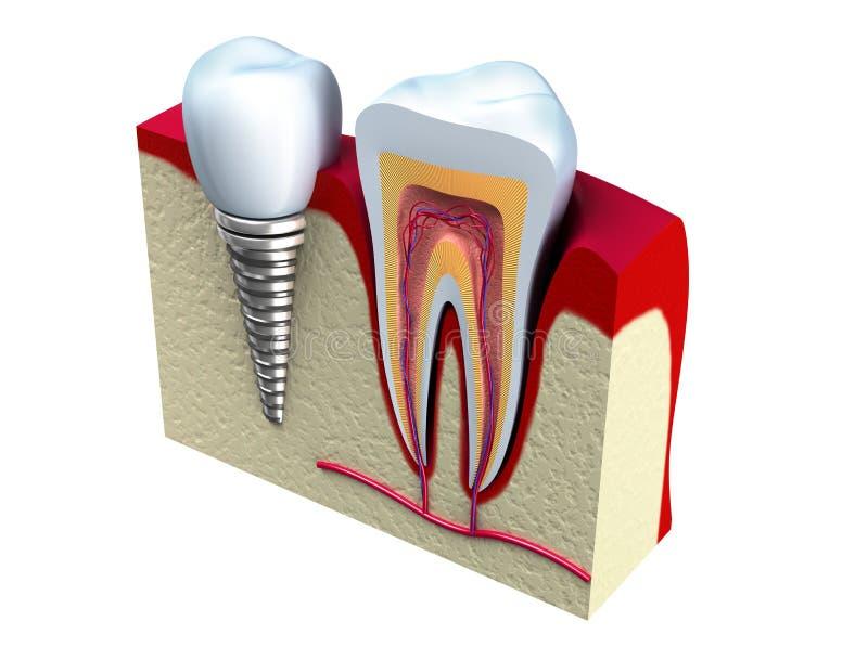 Anatomie van gezonde tanden en tandimplant in kaak royalty-vrije illustratie
