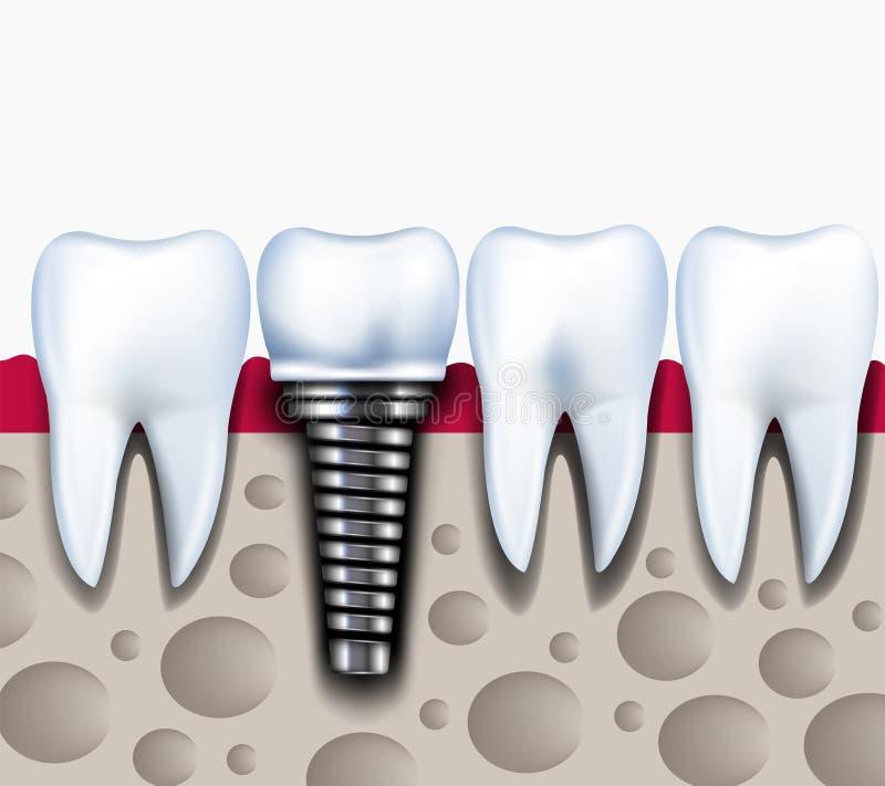 Anatomie van gezonde tanden en tandimplant in kaakbeen royalty-vrije illustratie