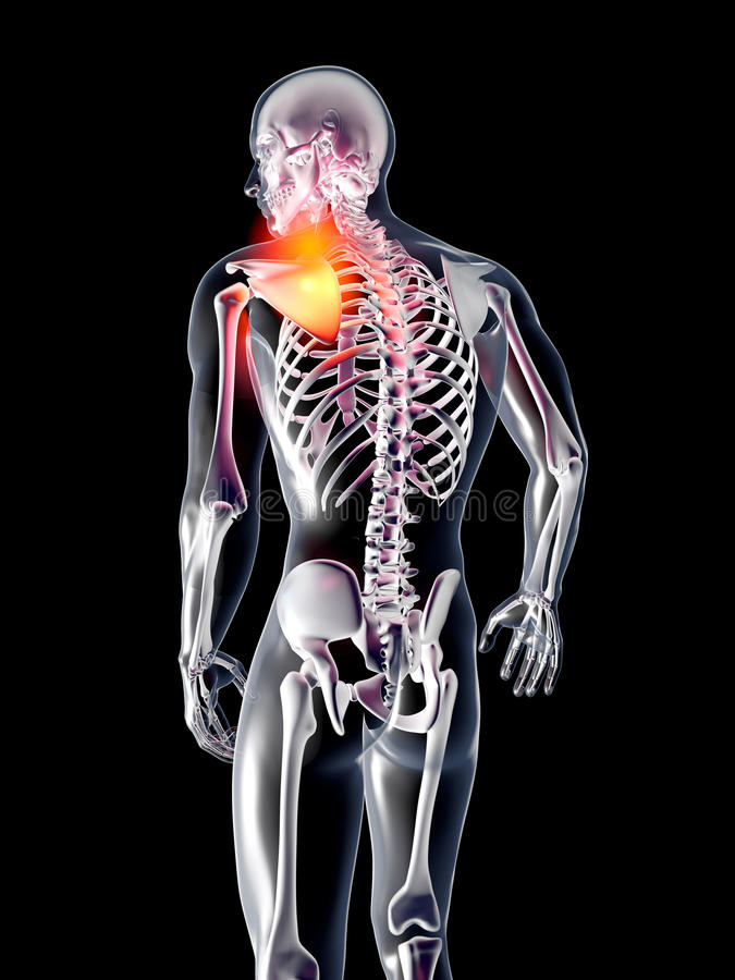 Anatomie - Verletzung Der Schulter Stock Abbildung - Illustration ...