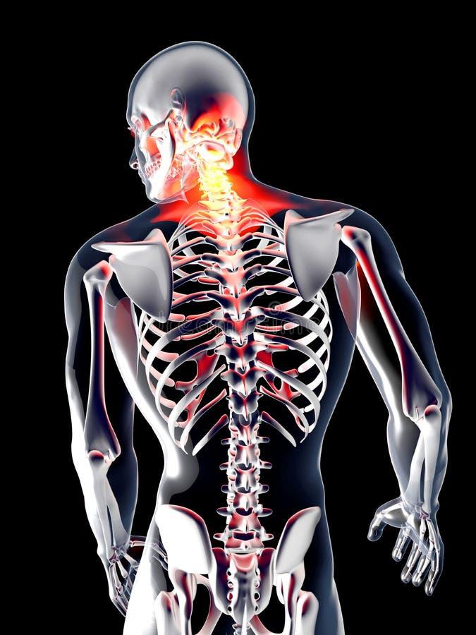 Anatomy - Back Pain vector illustration