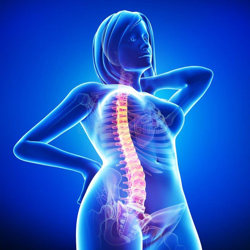 Anatomy Of Female Back Pain In Blue Stock Illustration ...