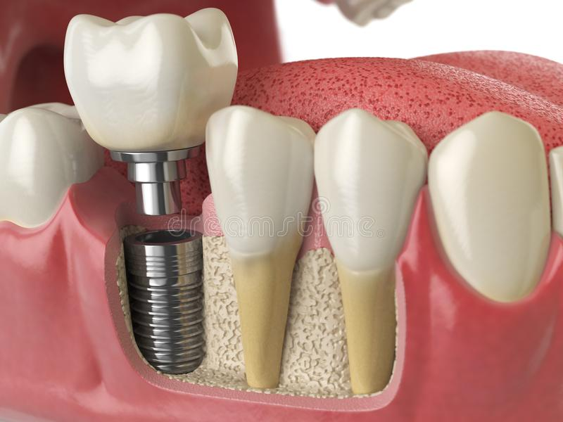Anatomy of healthy teeth and tooth dental implant in human denturra. royalty free illustration