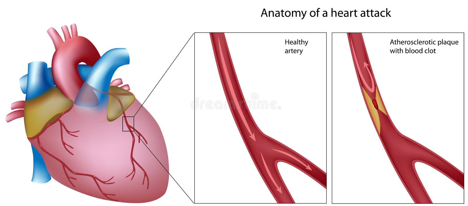 Anatomy of heart attack royalty free illustration