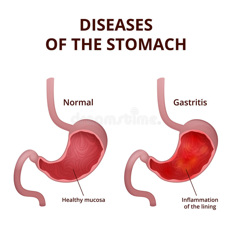 Anatomy Of The Human Stomach Stock Vector Illustration Of Disease