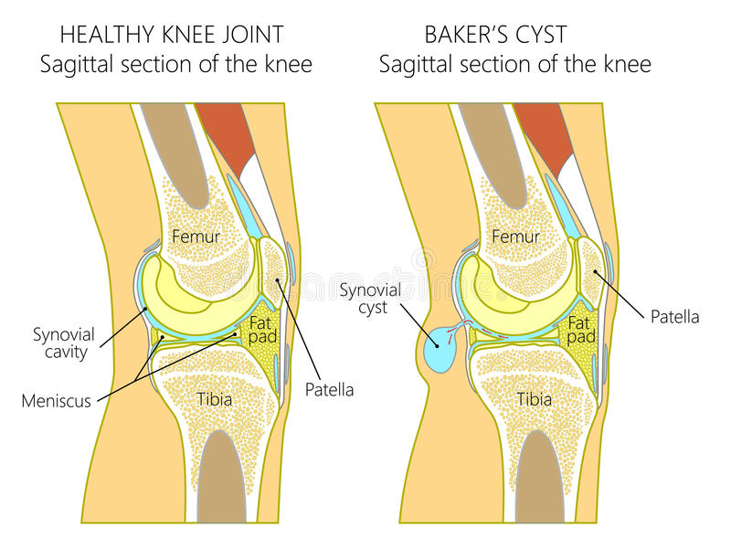 Anatomy of the knee_Baker`s cyst. Vector illustration of a healthy human knee joint and unhealthy knee with Baker`s cyst. Anatomy of human knee, sagittal section vector illustration
