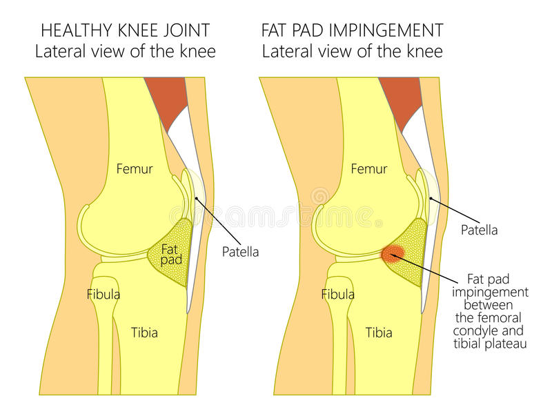 Anatomy Of The Kneefat Pad Impingement Syndrome Stock Vector
