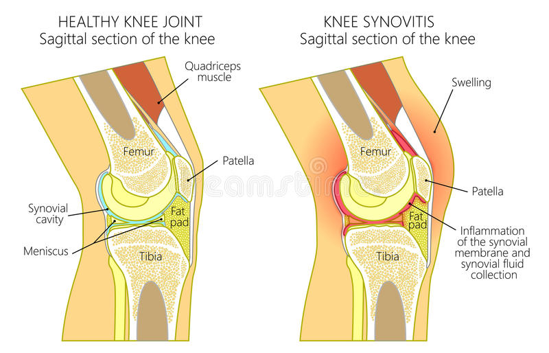Anatomy of the kneesynovitis stock vector illustration of gout download anatomy of the kneesynovitis stock vector illustration of gout orthopedy 98139791 ccuart Choice Image