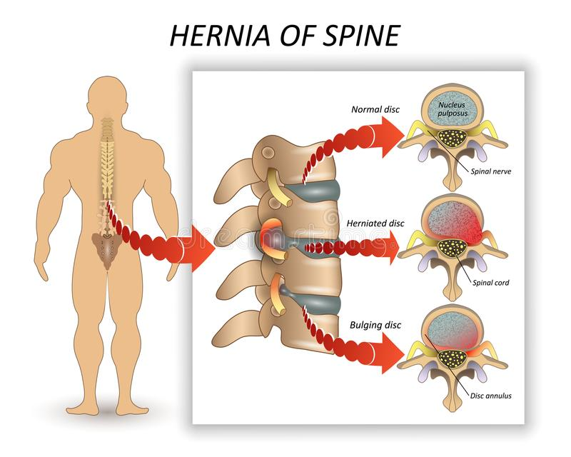 Anatomy medical diagram of a human spine with the hernia and description of all sections and segments of the vertebrae, vector. royalty free illustration