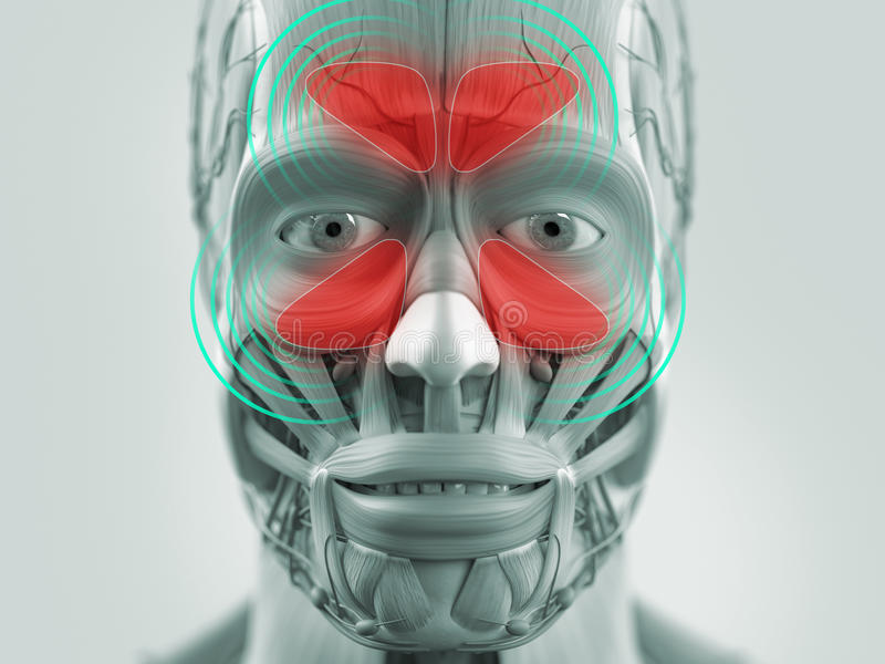Anatomy model showing sinus infection. vector illustration