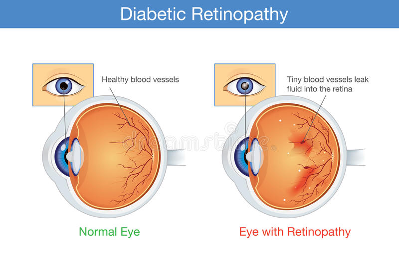 Anatomy of normal eye and Diabetic retinopathy. stock illustration