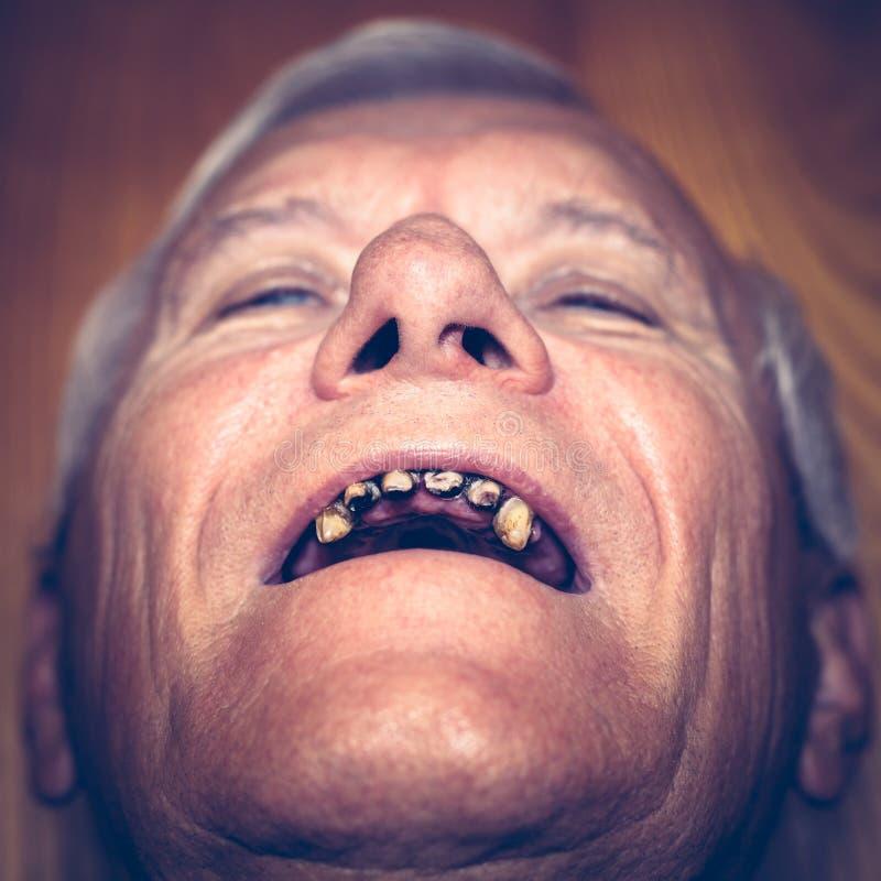 Ancio com dentes feios imagem de stock imagem de povos 57984669 download ancio com dentes feios imagem de stock imagem de povos 57984669 altavistaventures Image collections