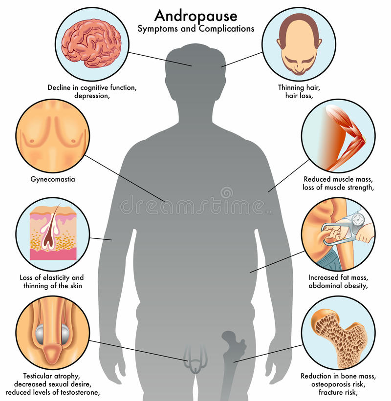 Andropause. Medical illustration of the symptoms and complications of andropause vector illustration