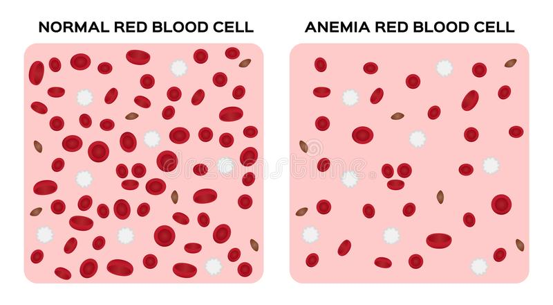 Anemia Blood Anatomy Concept Stock Illustration Illustration Of