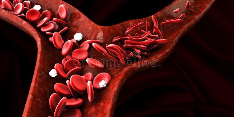 Anemia de la célula falciforme, mostrando el vaso sanguíneo con el creciente normal y deformated libre illustration