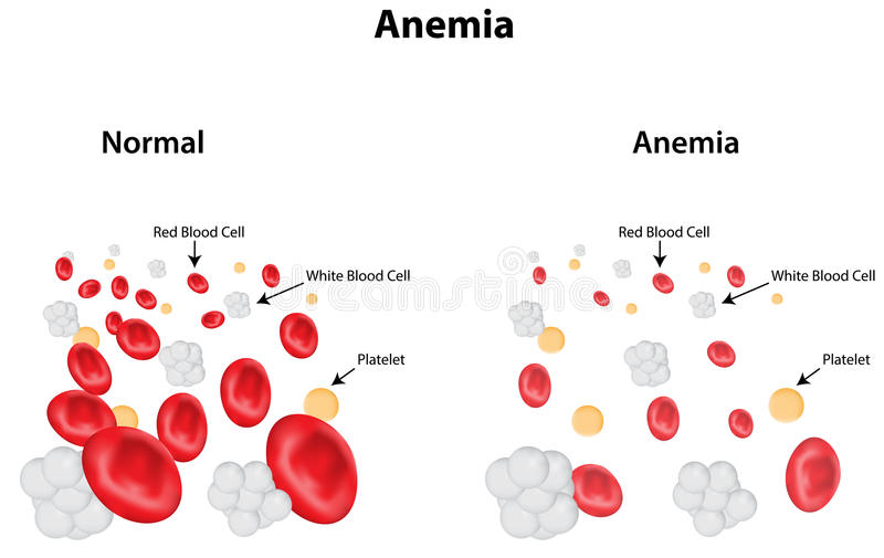 Anemia Diagram. Anemia labeled diagram for public health vector illustration