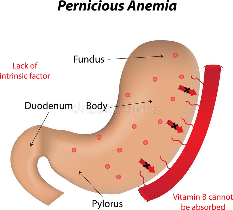 Anemia pernicioso ilustração stock