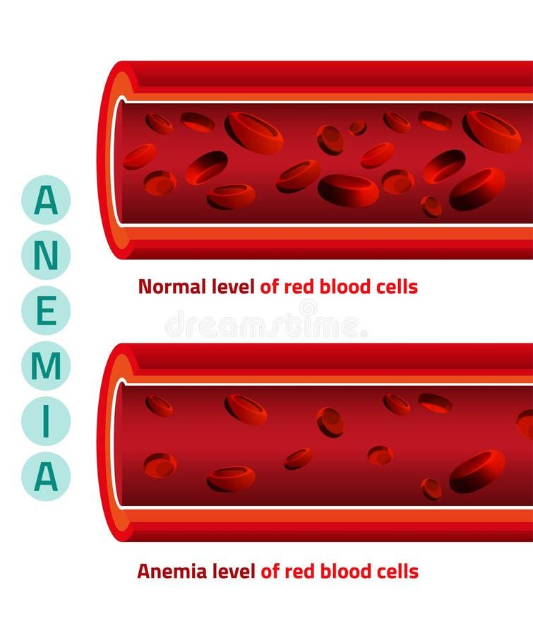 Anemia równa komórki krwi ilustracja wektor