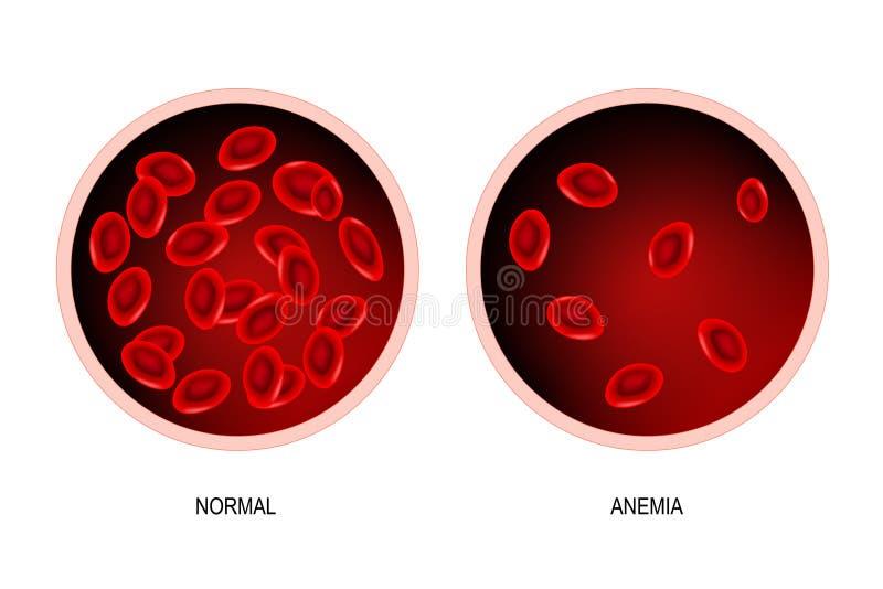 anemia sangre del ser humano y del vaso sanguíneo sanos con anemia stock de ilustración