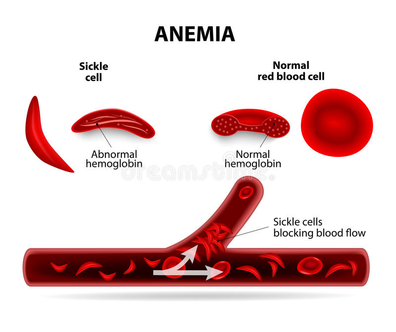 Anemia. Sickle cell and normal red blood cell stock illustration