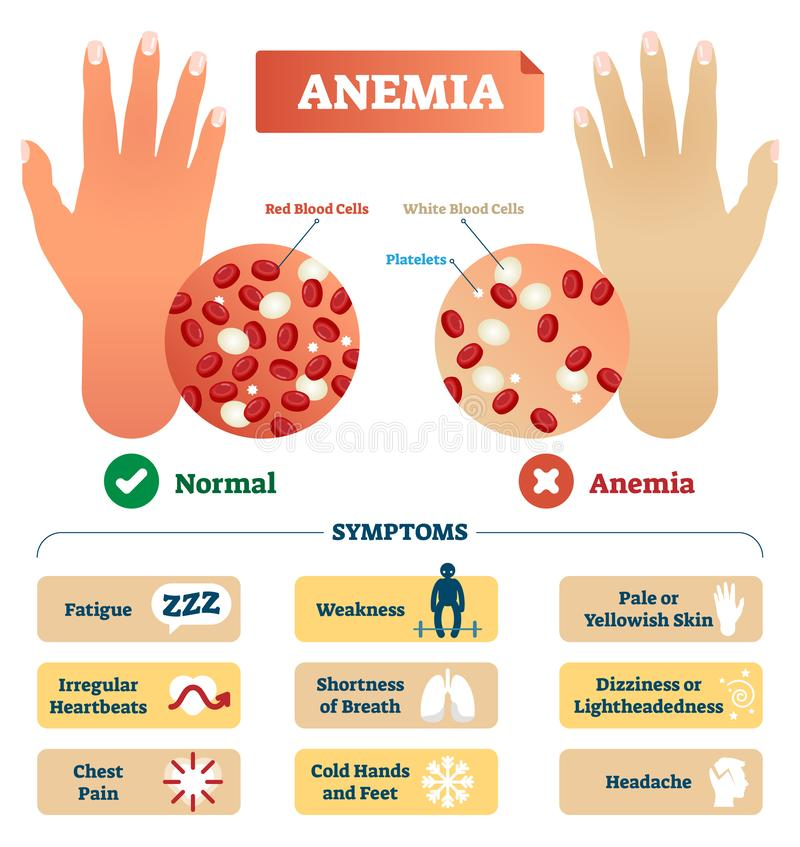 Anemia vector illustration. Labeled scheme with red blood cells. stock illustration