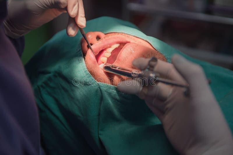 Anesthesie voor tandextractie door de tandarts Dentistry in het ziekenhuis stock fotografie