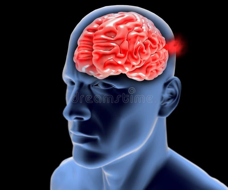 Aneurisma cerebrale, testa del cervello illustrazione di stock