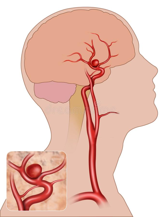 Aneurisma fusiforme hersen stock illustratie