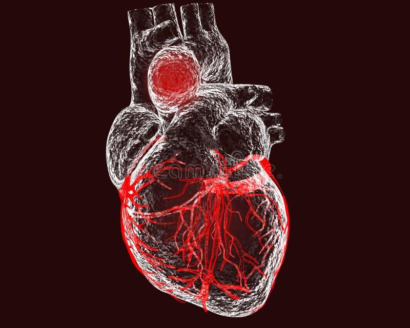 Aneurisma van stijgende aorta royalty-vrije illustratie